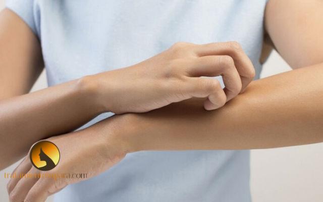 tratamientos para las alergias en las manos