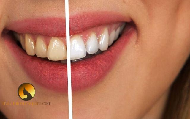blanqueamiento de dientes de forma natural