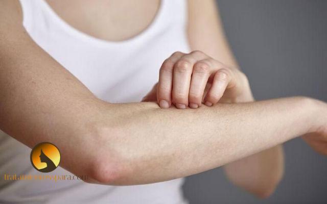 infusion para tratar alergias en las manos