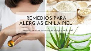 remedios caseros para alergias en la piel