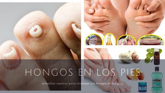 hongos entre los dedos de los pies