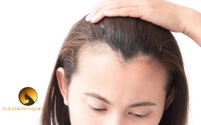 tratamientos naturales para alopecia en mujeres