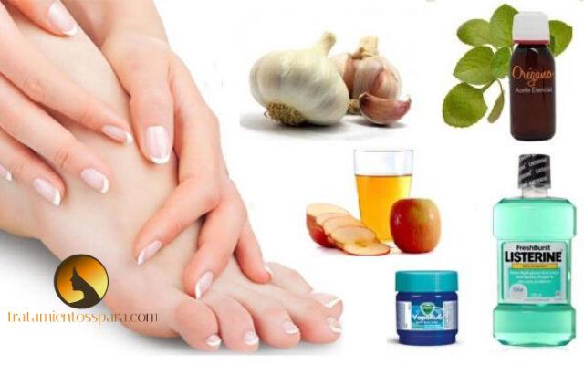 remedios caseros para hongos en la piel