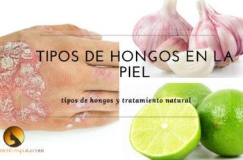 tipos de hongos en la piel tratamientos naturales